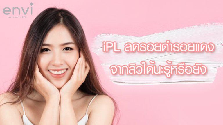 ipl ลดรอยสิว ป้องกันสิวอักเสบจากแบคทีเรีย P.Acne