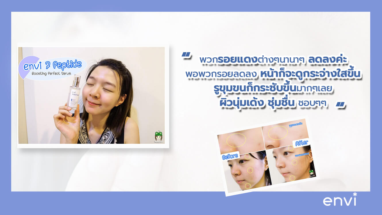 รีวิว เซรั่มหน้าใสเกาหลี บำรุงผิว เกาหลี Envi 7 Peptide